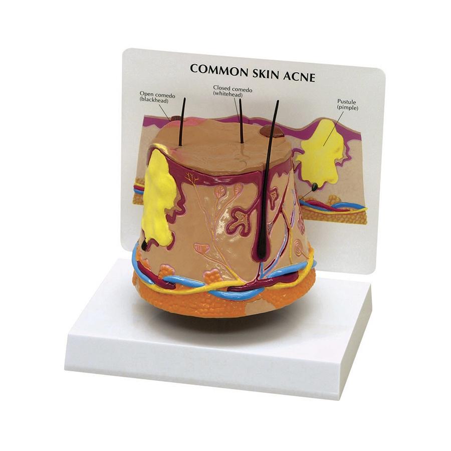 O modelo de Acne, é um modelo com corte transversal cilíndrico superdimensionado em relevo mostrando 3 condições na pele.