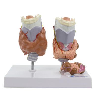 Modelo de Tireoide com Patologia 4 Partes